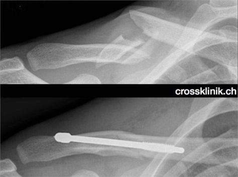 fabian-cancellara-broken-collarbone-x-ray-images