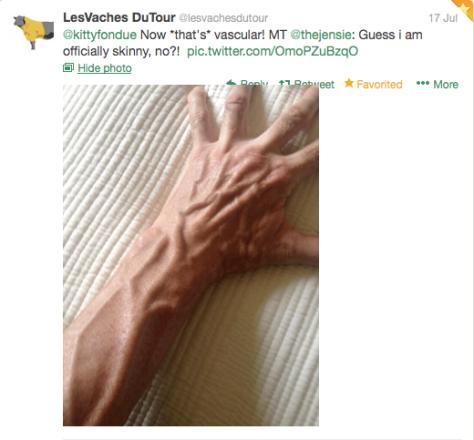 G jens vascular