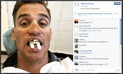 Stybar teeth 2