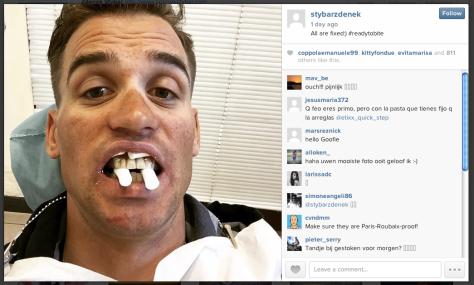 Stybar teeth 2